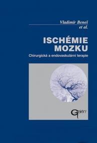 Ischémie mozku