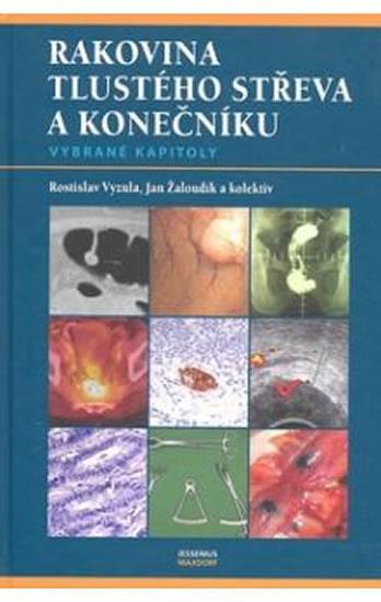 Rakovina tlustého střeva a konečníku - vybrané kapitoly