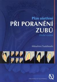 Plán ošetření při poranění zubů
